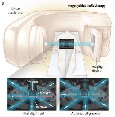 Tumore prostata radioterapia