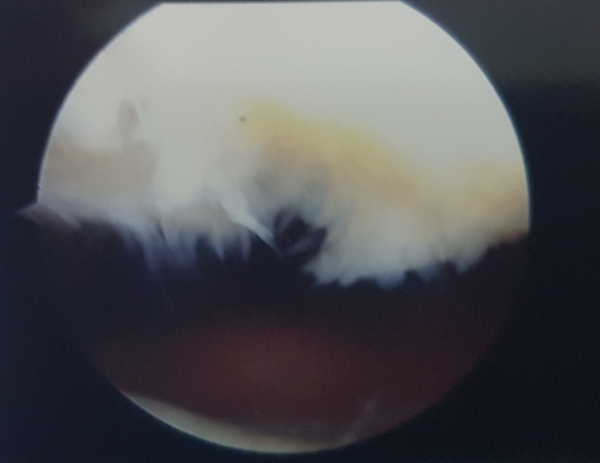 Condromalacia rotulea