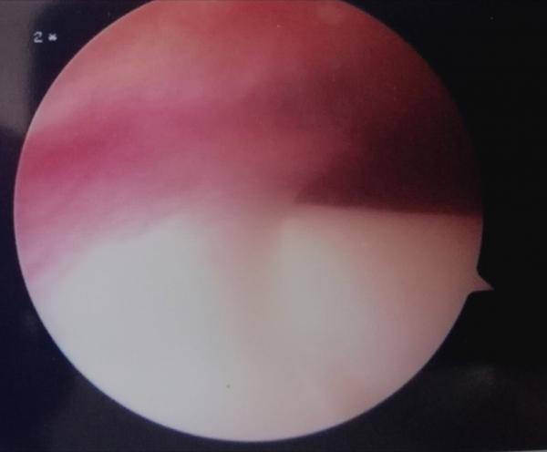 Plica sinoviale a mensola che provoca conflitto sul condilo femorale mediale