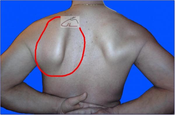 Lato sinistro dolorante della schiena sotto la scapola e il braccio sinistro