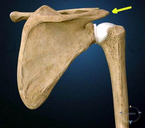 La Artrosi Acromion-Claveare
