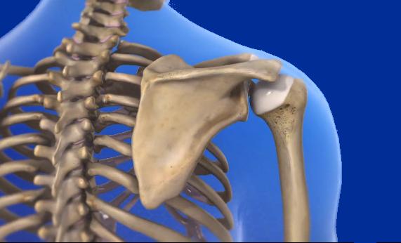 dolore di spalla