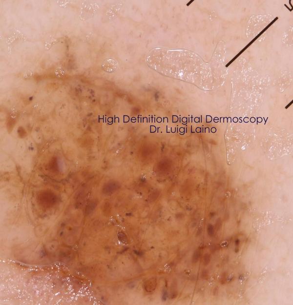 Melanoma immagini diagnostiche