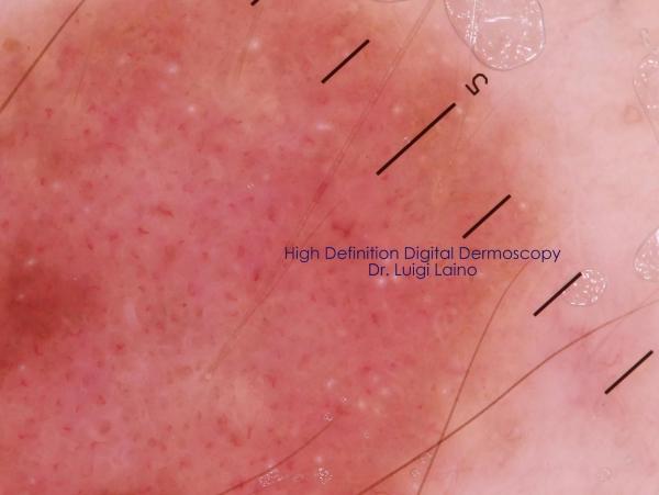 Diagnosi digitale melanoma
