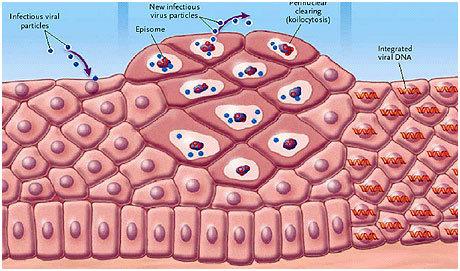 HPV integrazione epidermica dott laino luigi