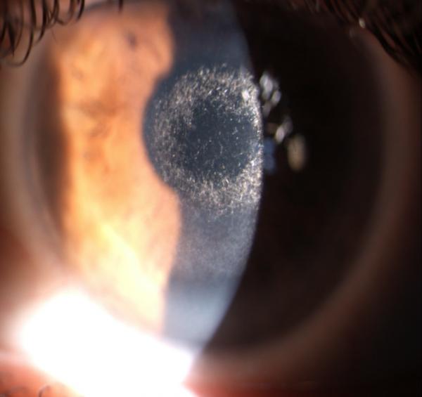Rosacea Oculare