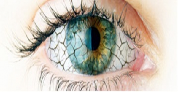Occhio secco