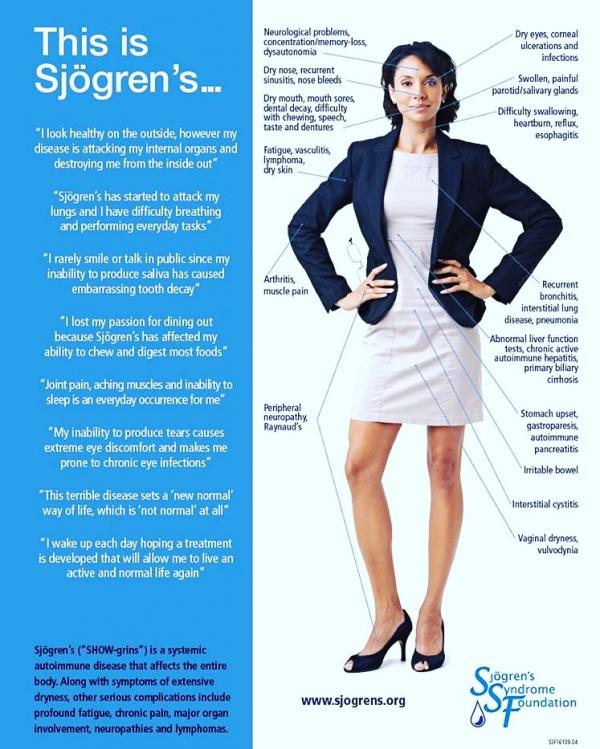 Sindrome di Sjögren sulla donna