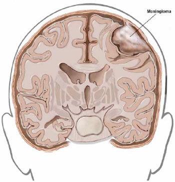 Figura 2. Rappresentazione schematica di un meningioma della convessità cerebrale