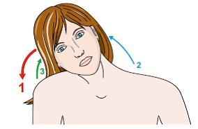 Distinia cervicale