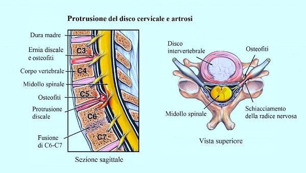 Cervicalgia da ernia discale
