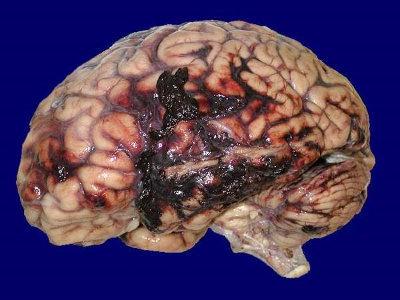 Contusione cerebrale