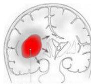 Ematoma intra-cerebrale