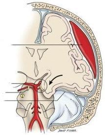 Ematoma subdurale