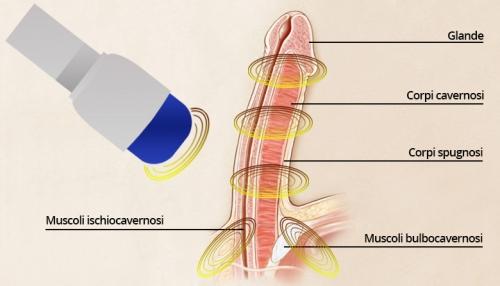 erezione con ultrasuoni