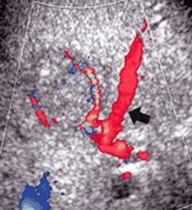 Ecocolordoppler epatico