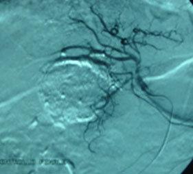arteriografia digitale