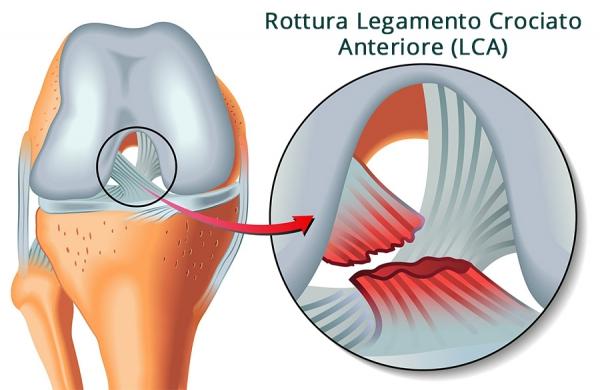 rottura-legamento-crociato-anteriore
