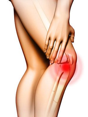 Degenerazione della cartilagine articolare
