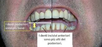 Procedimento allungamento denti