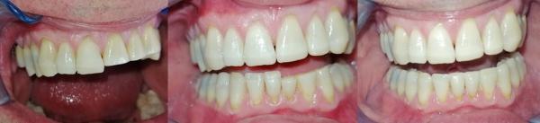 Allungamento denti prima e dopo