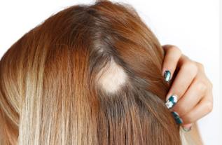 Alopecia Areata Donna