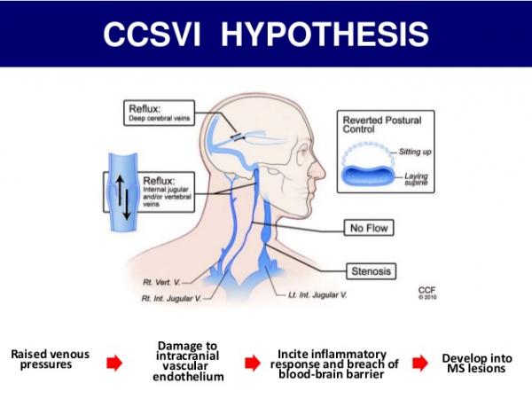 CCSVI e sclerosi multipla