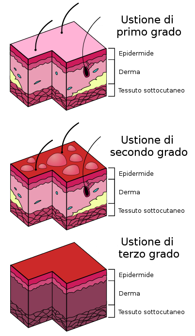 Diagramma gradi di ustione