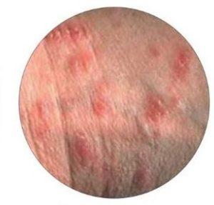 Eczema: arrossamento e taglietti sulla pelle del pene