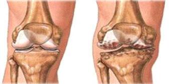Alterazioni anatomo-patologiche dell'osteoartrosi di ginocchio