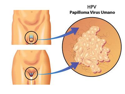 papilloma-virus