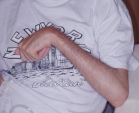 Spasticità dei muscoli flessori di gomito, polso e dita