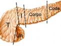 Le neoplasie del pancreas: fattori di rischio, diagnosi e trattamento