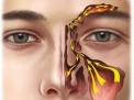 Balloon Sinuplasty la nuova cura per la sinusite cronica e il mal di testa