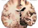 Come si può distinguere fra le diverse forme di demenza?