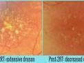 Degenerazione Maculare Senile: un nuovo approccio terapeutico con un laser freddo a nanosecondi