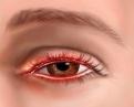 Le persone affette da blefarite hanno più probabilità di avere alcune malattie sistemiche