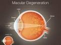 Test genetico preventivo per la Degenerazione Maculare legata all'età