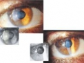 Abrasione corneale