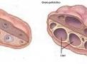 Il dolore mestruale (dismenorrea): che cosa si può fare?
