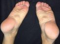 Il morbo di Ledderhose: una rara patologia del piede