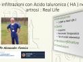 Le infiltrazioni con Acido Ialuronico ( HA ) nell' artrosi : Real life