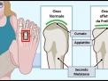 La malattia di Freiberg : una possibile causa di metatarsalgia