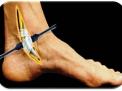 Dalla Condropatia all'artrosi del ginocchio