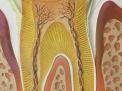 Traumi da occlusione ed effetti parodontali