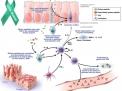 Celiachia,Morbo Celiaco,Gluten Sensitivity,Glutine,Gliadina,Malassorbimento,Dimagrimento celiachia gliadina  dimagrimento