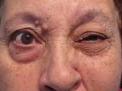spasticita-muscoli-volto-e-spasticita-ghiandole