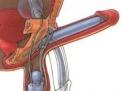 protesi-peniene
