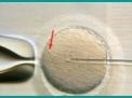 Ossificazione del pene: un evento traumatico o evoluzione retrograda?