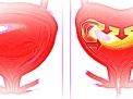 Classificazione delle prostatiti e Sindrome Dolorosa Pelvica Cronica (CPPS)